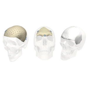 Stryker ID Cranial implants
